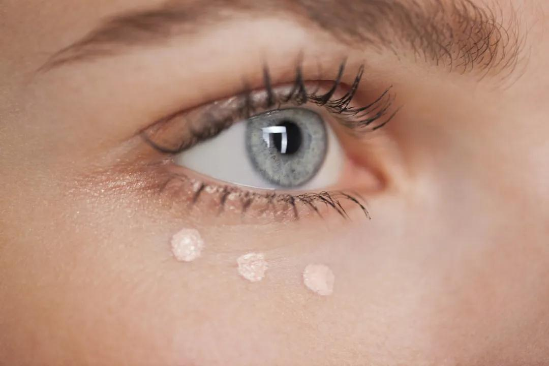 存在已久的黑眼圈,还有可能彻底消除吗?
