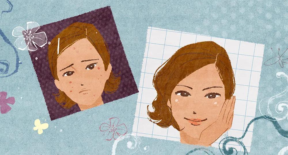 痘痘、黑头和闭口总是不见好的原因是?