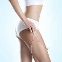 不管是生长纹还是妊娠纹都能靠这些方法避免