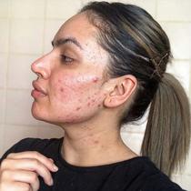 积极接受自己的皮肤状况 痤疮需要被正常化看待-护肤&美体